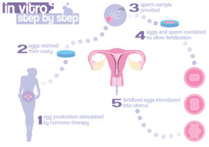 Scheme of in vitro fertilization - step by step