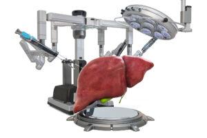 AI monitors liver transplant